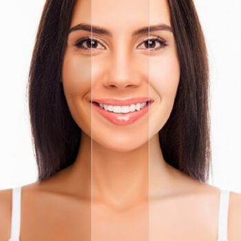 How to Lighten Your Skin Tone