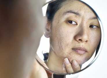 Tips To Remove Pimple & Acne Marks