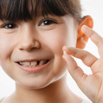 Milk Teeth – Are They Important?