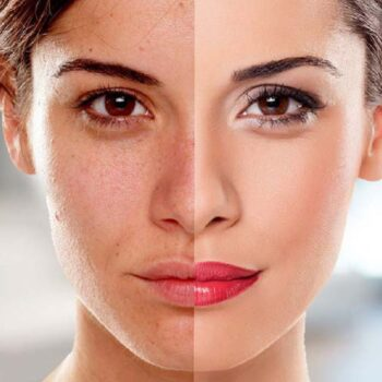 Is Laser Skin Whitening Therapy Safe?